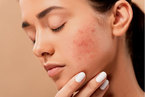 acne-5561750